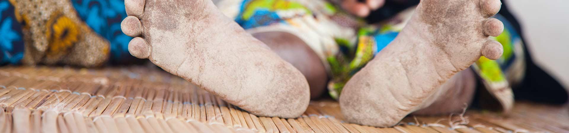 Braço-de-ferro com o VIH/sida